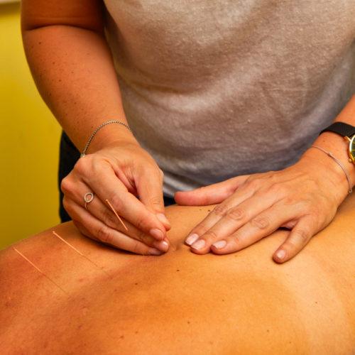 presta-acupuncture